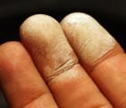 Hydrogen_peroxide_30_percent_on_skin